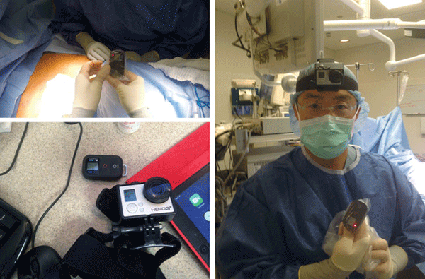 GoPro-in-the-operating-room